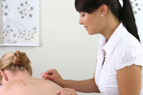 Acupuncture Treatment in St.Louis, MO