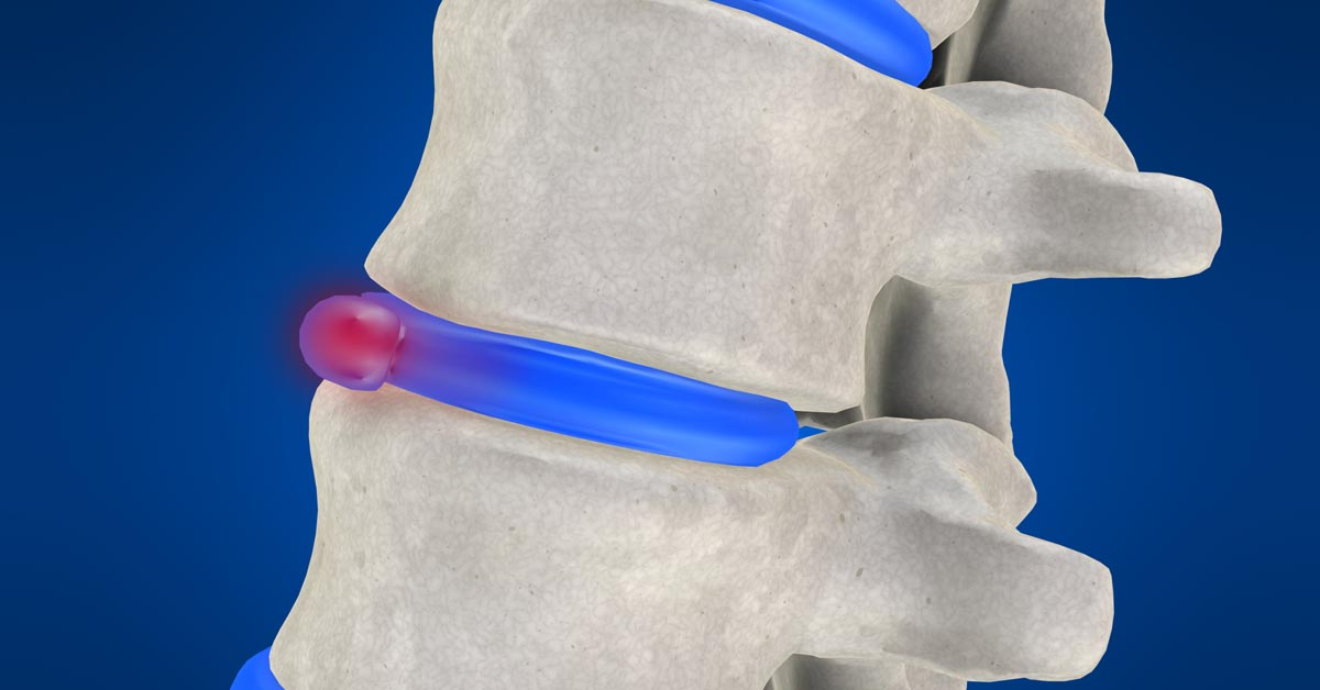 North St. Louis, MO non-surgical disc herniation treatment
